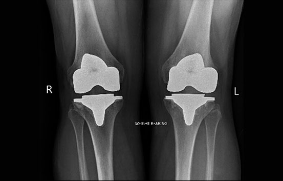 After_Total_knee_replacement_sa.jpg